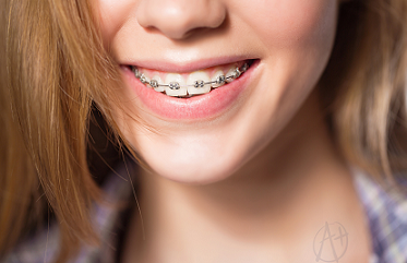 ortodonti diş tedavisi kahramanmaraş