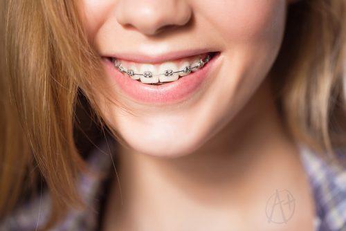 maraş ortodonti